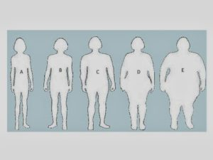Obesity Scale and BMI